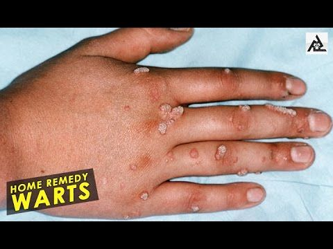 #NaturalCures #DIY Home Remedies For Warts | Best Health And Food Tips | Education #HealthTips #best #care #English #food #HealthyEatingTips