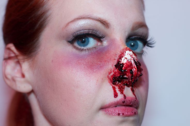 #sfx #spfx #specialfx #specialeffectsmakeup #specialfxmakeup #specialeffects #makeup #halloween #halloweenmakeup #bloody #blood #gore #nose #brokennose #messedupnose #bennyeIn this makeup  I used Ben Nye nose & scar wax and Ben Nye simulated bone wax (the white part of my nose). Under the eyes and on my cheekbones I used cream colors of Ben Nye, the master bruise wheel. Finally I added blood. Afterglowsfx83