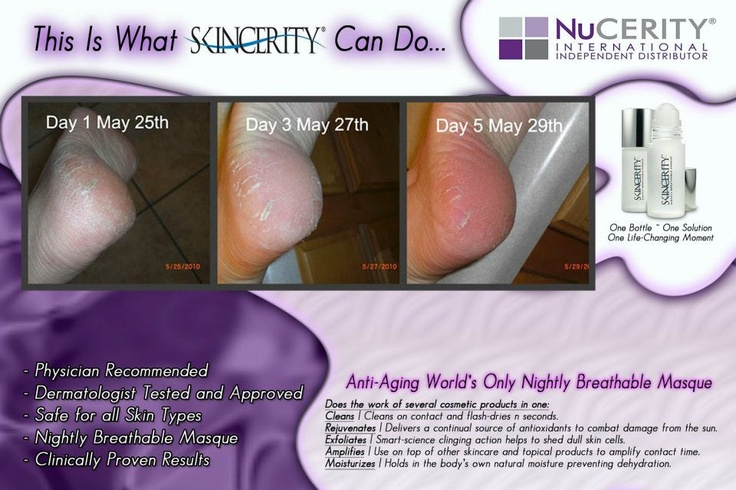 Works on your cracked heels!