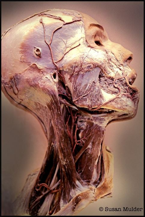 This image shows the result of Plastination, a technique or process used in anatomy to preserve bodies or body parts, first developed by Gunther von Hagens in 1977. The water and fat are replaced by certain plastics, yielding specimens that can be touched, do not smell or decay, and even retain most properties of the original sample Image © Susan Mulder The National Museum of Health and Medicine