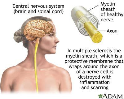 Multiple sclerosis: autoimmune disease where inflammation (caused when body's immune cells attack itself) causes nerve damage.  Genetics and viruses may play a factor, as well as environmental effects.  Symptoms vary but include bowel issues, muscle spasms, difficultly controlling movement and speech, slowed brain activity, etc.  There is no cure but the symptoms can be controlled through medication and physical therapy.