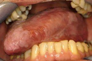 Sensibilitea Dentinara-cauze si tratament – STOMATOLOGIE