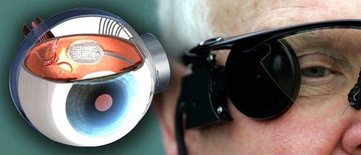 Бионический глаз — это специальное устройство, позволяющее слепым людям различать визуальные объекты и в определенном объеме компенсировать отсутствие зрения. Принцип работы бионического глаза построен на имплантации протеза сетчатки в поврежденный глаз. Это позволяет дополнить сохранившиеся в сетчатке неповрежденные нейроны искусственными фоторецепторами. Важная часть системы бионического глаза — полимерная матрица, снабженная фотодиодами, способная фиксировать слабые электрические импульсы…