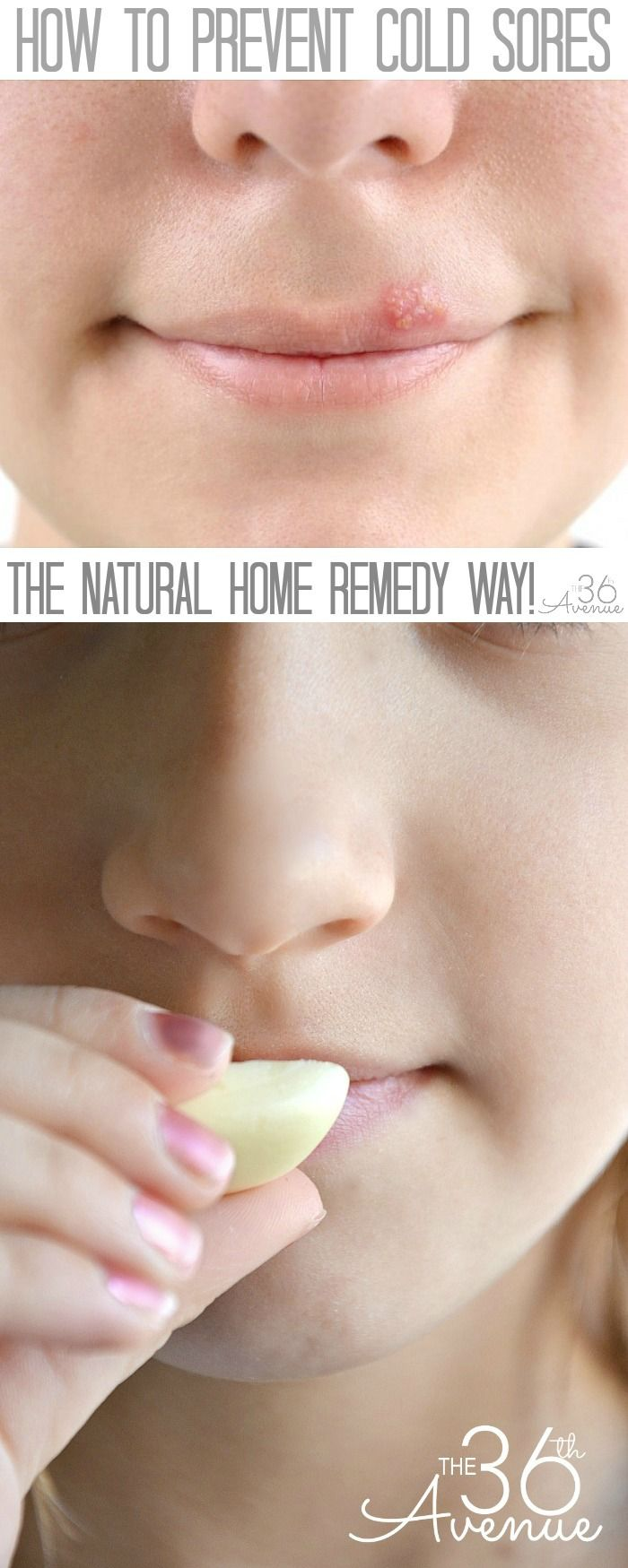 How to prevent cold sores. Home remedies for cold sores!