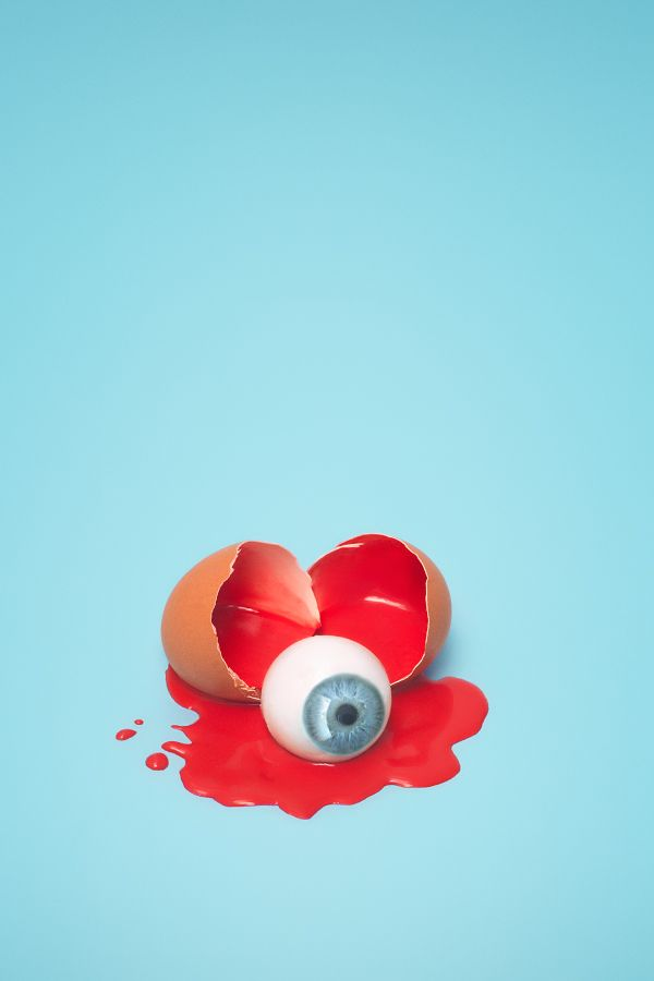 CHARLOTTE AUDREY OWEN-MEEHAN, eyeball, blood, egg, photographer, colour, odd, life, quirky, observational