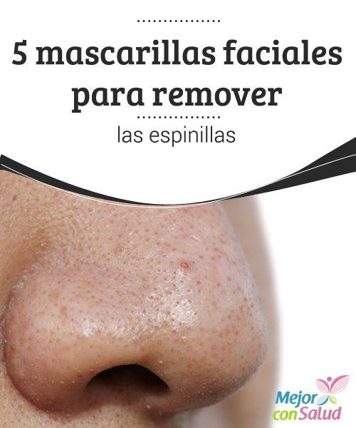 5 mascarillas faciales para remover las espinillas  Las espinillas o comedones son pequeños granitos de sebo que aparecen en la piel debido a la obstrucción de los poros por el exceso de producción de grasa y células muertas.