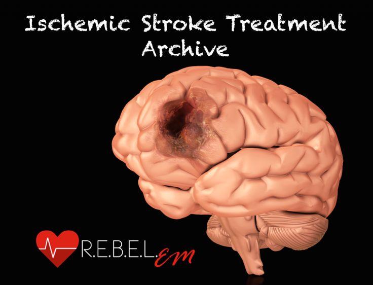 Ischemic Stroke Treatment Archive  http://rebelem.com/ischemic-stroke-treatment-archive/
