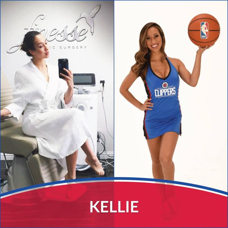 We know how to take care of our Clippers Girls! LA Clippers Spirit Dancer, Kellie stopped by our Finesse office in Newport Beach last week for a little laser hair removal.