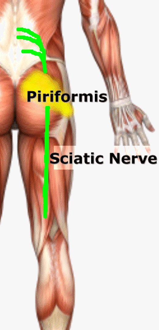 90 best pain in the butt images on pinterest exercises physical cause of sciatica piriformis syndrome publicscrutiny Images