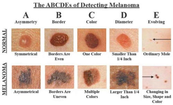 We hebben allemaal bruine vlekken, ook wel ouderdomsvlekken genoemd. Of het nou op je gezicht, benen, armen of schouders zijn, deze vlekken zijn overal op je lichaam te vinden. Naarmate