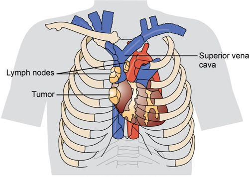 Superior Vena Cava Syndrome occurs when the SVC is compressed or obstructed by tumor growth. Signs and symptoms result from blockage of blood flow in the venous system of the head, neck, and upper trunk. Early s/s which generally occur in the morning, include edema of the face, especially around the eyes, and tightness of shirt collars. As condition worsens, the client experiences edema of the arms and hands, dyspnea, erythema of the upper body, and epistaxis.