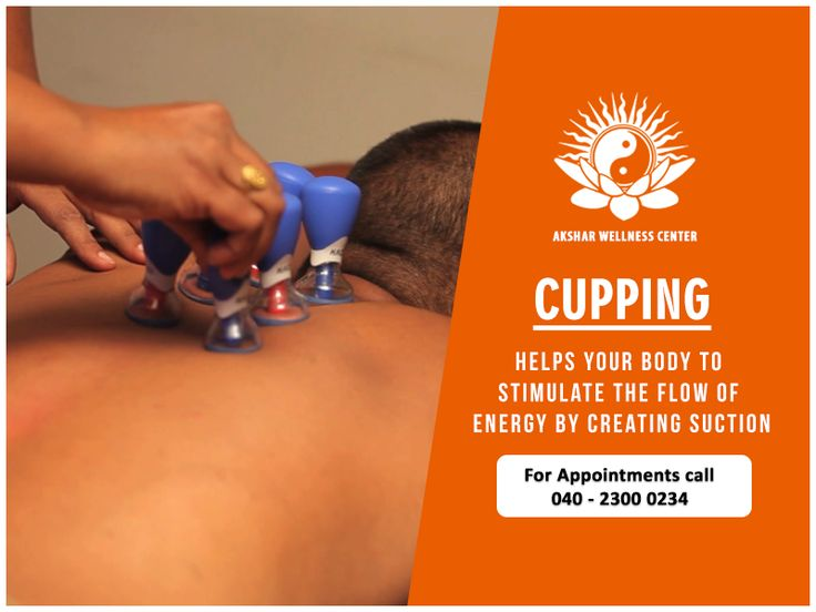 """""""An ancient form of alternative medicine in which a local suction is created on the skin; practitioners believe this mobilizes blood flow in order to promote healing. Try a session of cupping #Therapy with us and you will see the difference for yourself.  #Wellness #Aksharwellness #Cupping"""""""