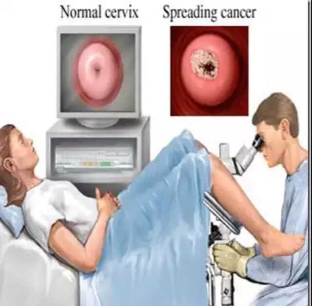 tests procedures pelvic exam basics what expect