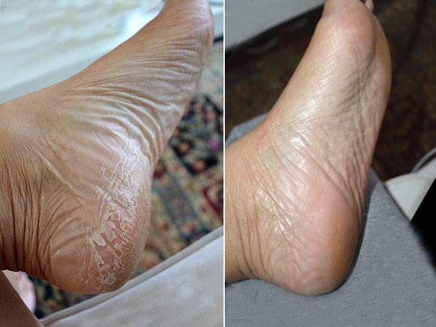 Baby Foot Peel Review: Japanese Baby Feet Peel