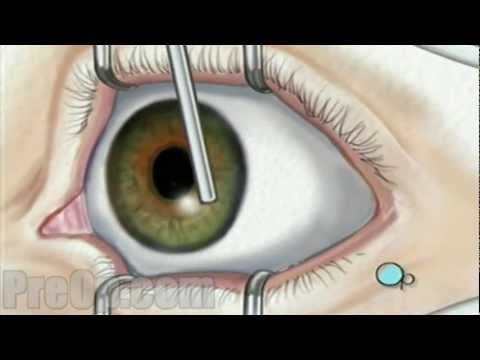 PRK Eye Surgery - Cost, Risks, Results