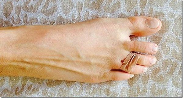 Chaque jour, elle noue deux de ses orteils avec un élastique, découvrez pourquoi !