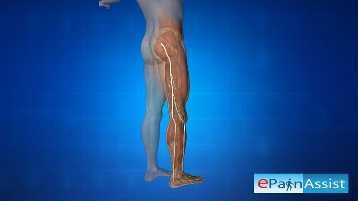 What is Piriformis Syndrome? Know its Symptoms, Diagnosis, Treatment - YouTube