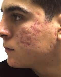 Read more about many procedures and treatments in healing different types of acne scars. For more information, click here.