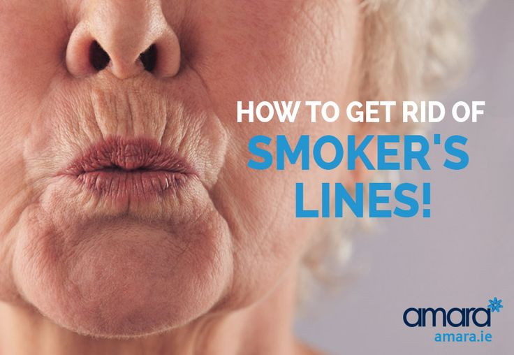 Smoker's lines aren't just as a result of smoking! They are from volume loss in the structures around the lip, find out how get get rid of smoker's lines!