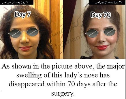 After rhinoplasty, usually the major swelling of the nose will disappear after 2 months. Minor swelling will subside after one year. The medical recommendations to accelerate the healing process of the nose swelling after rhinoplasty, are provided in this page.