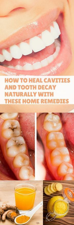 How to Heal Cavities and Tooth Decay Naturally wit… #Health #Wellness #Fitness #Tips #Food #Motivation #Remedies #Natural #Mental #Holistic #Skin #Woman's #Facts #Care #Lifestyle #Detox #Beauty #Diet #Body #Nutricion #Skincare #NaturalTreatments #HealthyL