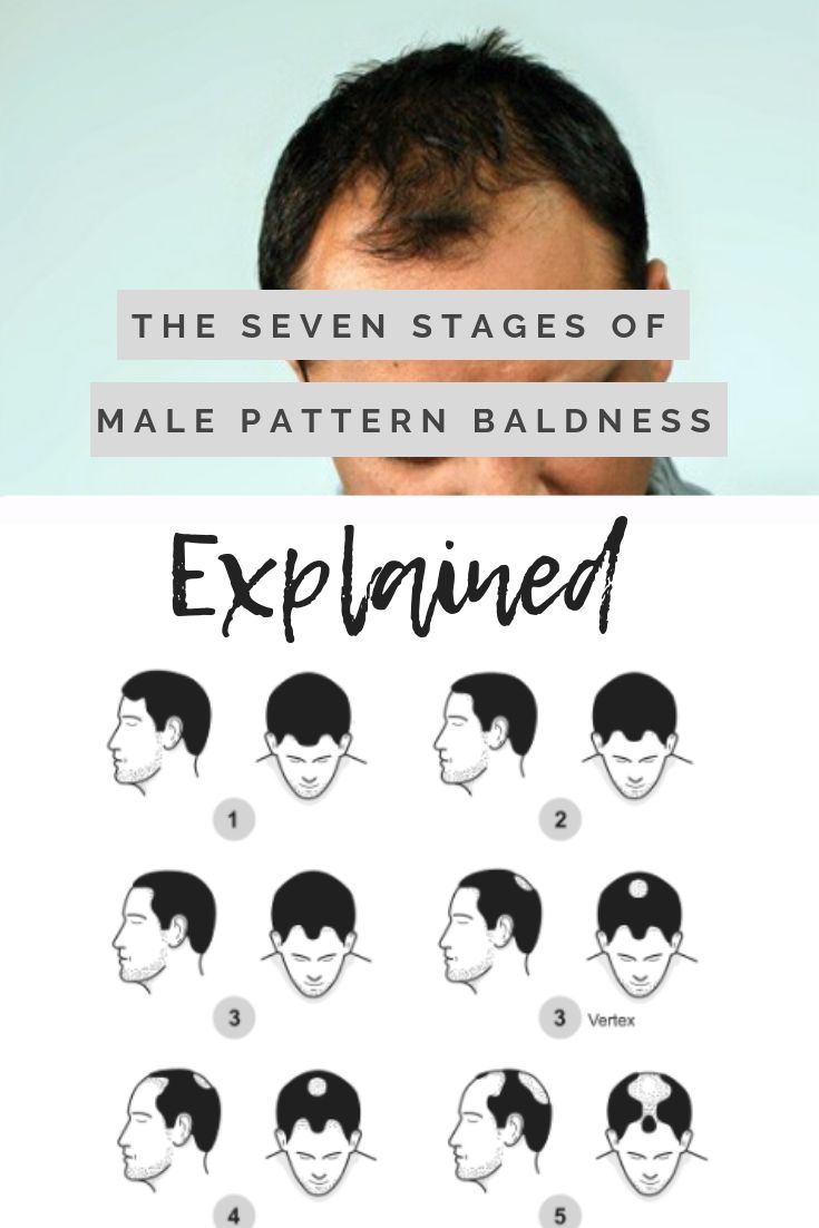 16+ How to tell if you have male pattern baldness inspirations
