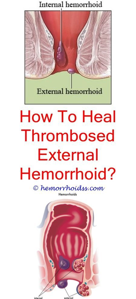 Can Inguinal Hernia Cause Hemorrhoids What Are Internal And