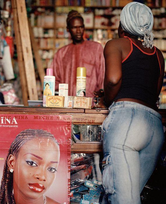 Λεύκανση του δέρματος στη Σενεγάλη - Η ΔΙΑΔΡΟΜΗ ®