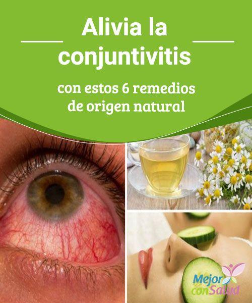 #Alivia la conjuntivitis con estos 6 #remedios de origen natural   La conjuntivitis se presenta cuando se irrita la membrana que recubre la superficie de los #ojos. Te compartimos 6 remedios caseros para aliviarla.