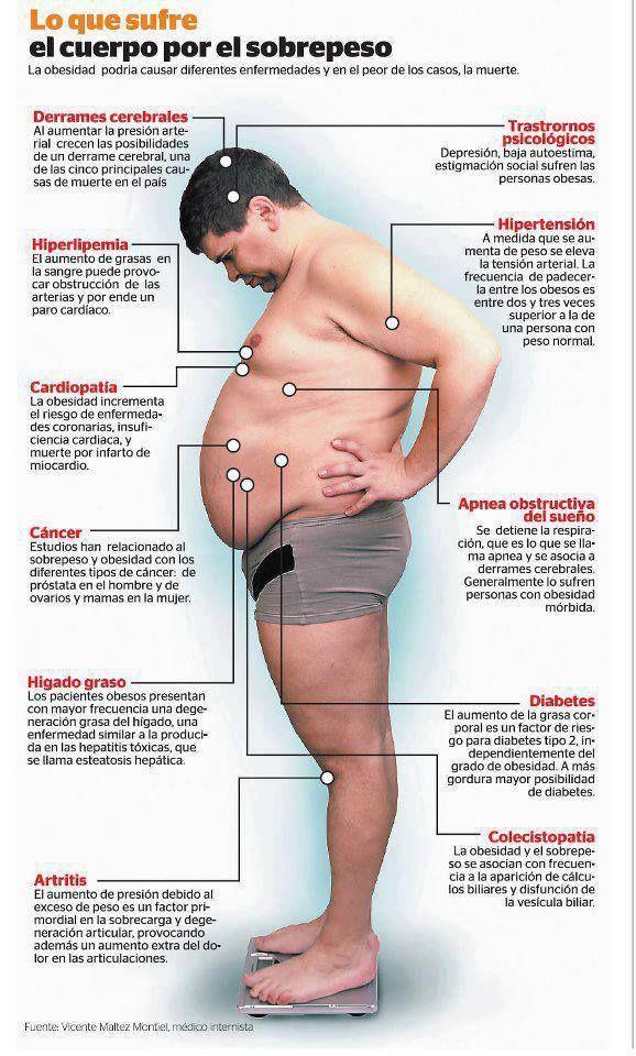 los problemas de la obesidad
