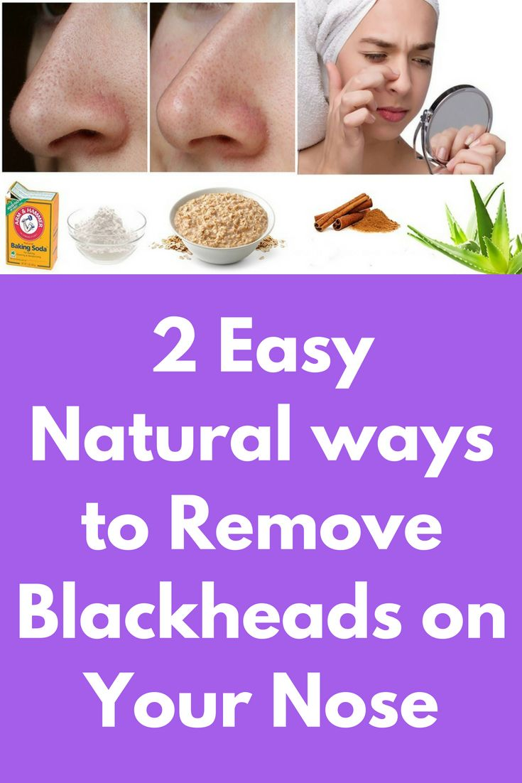 18+ Irresistible Natural Remedies To Remove Blackheads Ideas