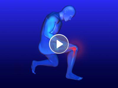 Qu'est-ce que l'arthrose du genou et par quoi est-elle principalement causée ?.  L'arthrose du genou, aussi appelée gonarthrose, provient d'une usure prématurée du cartilage de l'articulation du genou qui entraîne des difficultés lors de la marche. La gonarthrose est la cause la plus fréquente d'une douleur du...