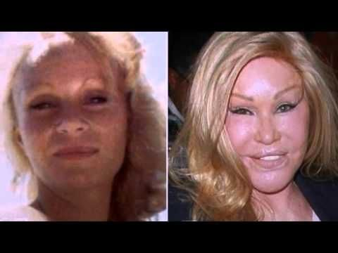 Catwoman Plastic Surgery Disaster Story