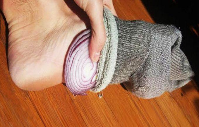 Vložte si prekrojenú cibuľu do ponožiek a choďte spať, zmení to váš život, doslova ho obráti na ruby   MegaZdravie.sk