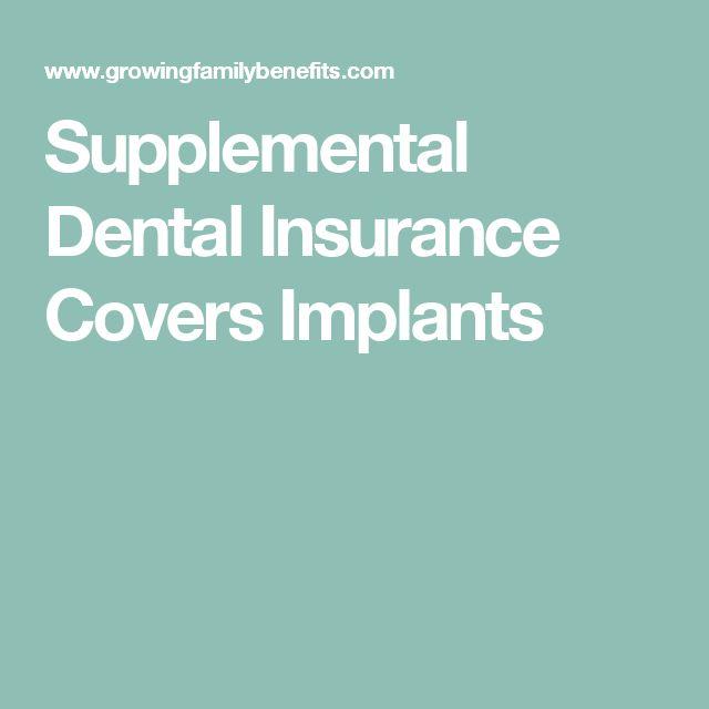 Supplemental Dental Insurance Covers Implants