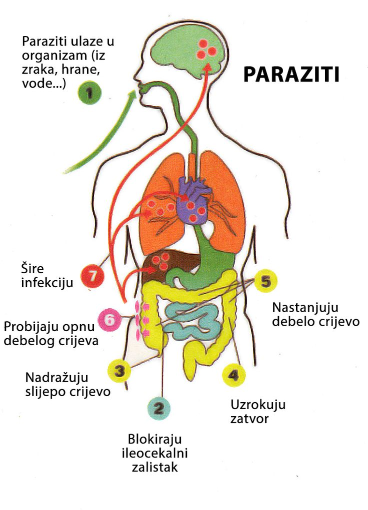 pin x paraziti)