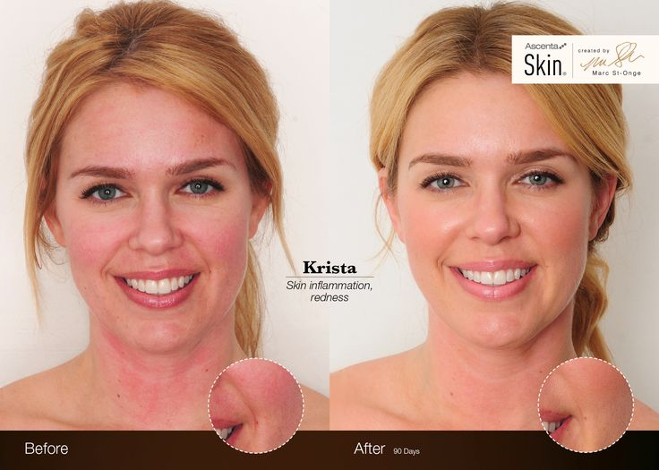 Krista's Before & After - See more amazing results at ascentaskin.com #testimonials #beautyfromwithin