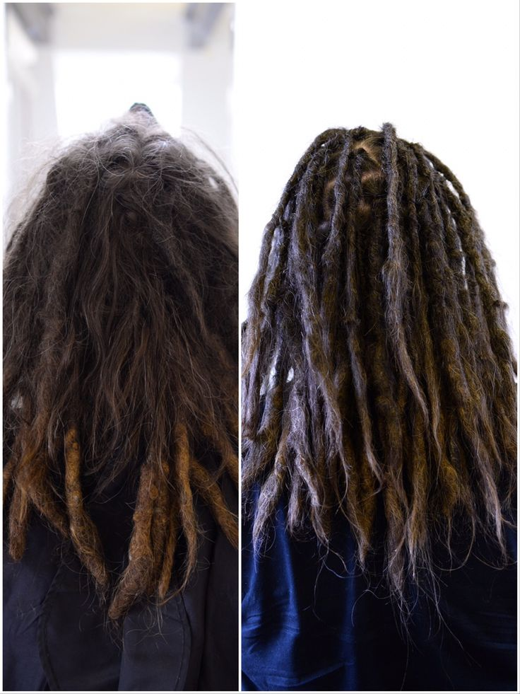 Here is one of my clients, the hair in the back of his head does not want to dread at all, so it's some work to crochet in the hair when I do his maintenance. Some root rubbing can help this if you have issues with this yourself.