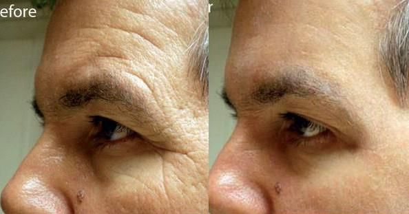 Before & After applying Instantly Ageless to his face and in just 2 MINUTES the results are AMAZING! He looks 10 years younger! Get ready to look great for the holidays! Visit >> http://looksyounger.com