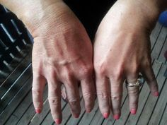 Les veines de la main Les veines digitales s'étendent depuis les doigts ou les orteils et s'unissent aux grandes veines de la main ou du pied pour renvoyer le sang veineux des extrémités vers les poumons. La main comporte quatre veines digitales qui s'anastomosent à l'arcade palmaire.
