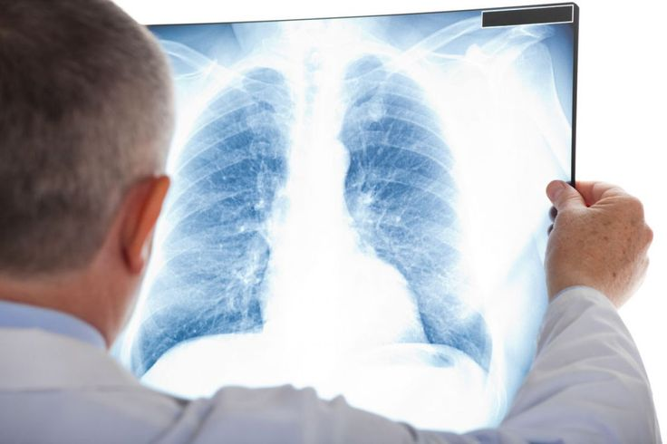 Simple tips to prevent pneumonia after surgery