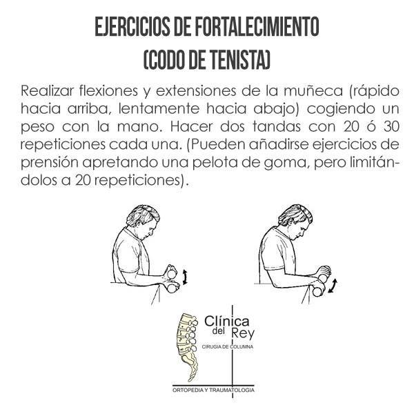 Un programa de estiramientos puede ser útil por disminuir la tensión del músculo sobre el tendón afecto. Los estiramientos incluyen el brazo afecto, así como el cuello, parte superior de la espalda y hombro, mano, muñeca, antebrazo y tríceps.