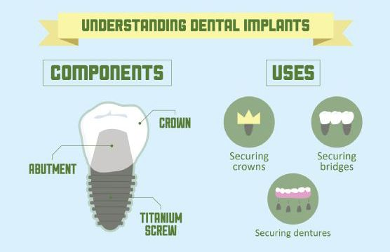 [What is the use of dental implants?] ------------------------------------------------- Replacing your teeth will provide you fully restored mechanical conditions during chewing, speaking or smiling. #dentalimplant #dentistry #dentalclinic #cvitaminclinic #szeged #hungary