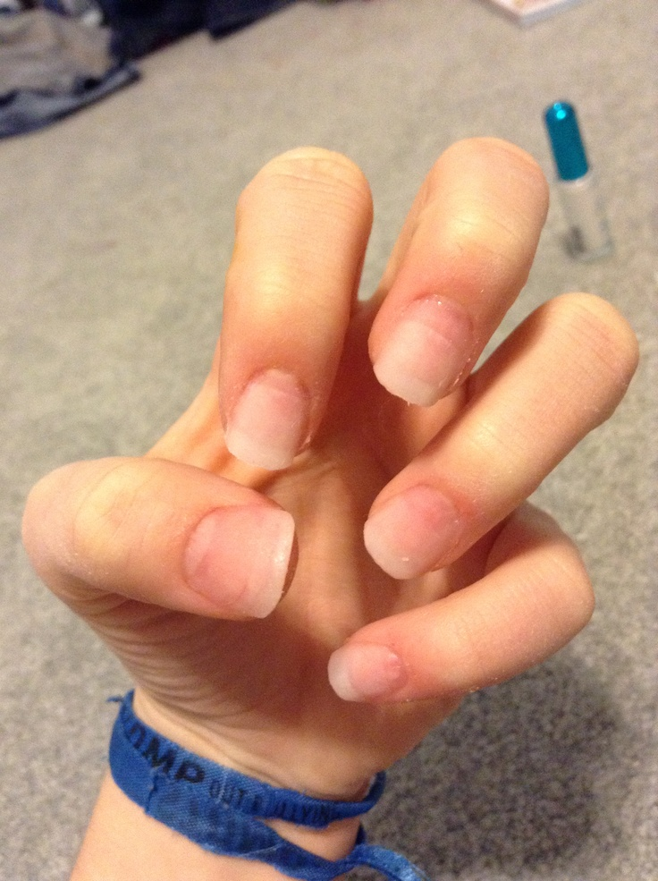 Mejores 36 imgenes de do it yourself acrylic nails en pinterest do it yourself acrylic nails buy a 20 acrylic nail set at sallys and simply solutioingenieria Gallery