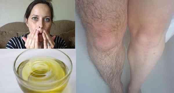 Para esse remédio, você precisará 1 colher de sopa de iodo 2% 1 xícara de óleo de bebê   Misture Esfregue naárea com