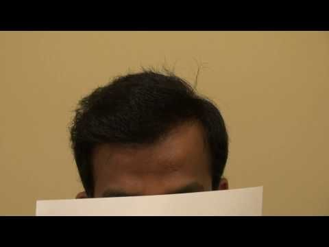 Men Hair Loss Surgery Treatment Hair Transplant Result Dr. Diep http://www.mhtaclinic.com -  How To Stop Hair Loss And Regrow It The Natural Way! CLICK HERE! #hair #hairloss #hairlosswomen #hairtreatment Men hair loss surgery treatment by hair transplant restoration using both FUE and FUT by Dr. Diep  or 408-356-8600 or 866-999-6482. This client is a Norwood 5/6 advance hair loss... - #HairLoss
