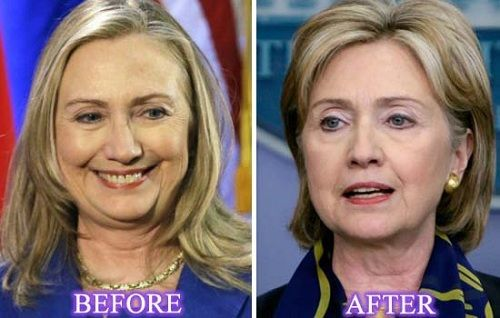 Hillary Clinton Facelift Awesome Result