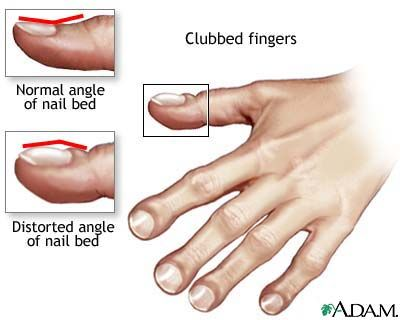 Clubbed fingers = Hypoxia