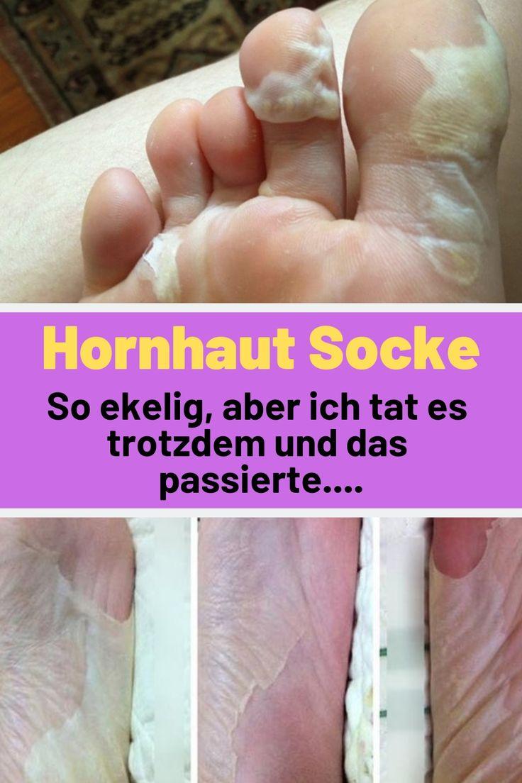 Funktioniert die Hornhaut Socke wirklich?
