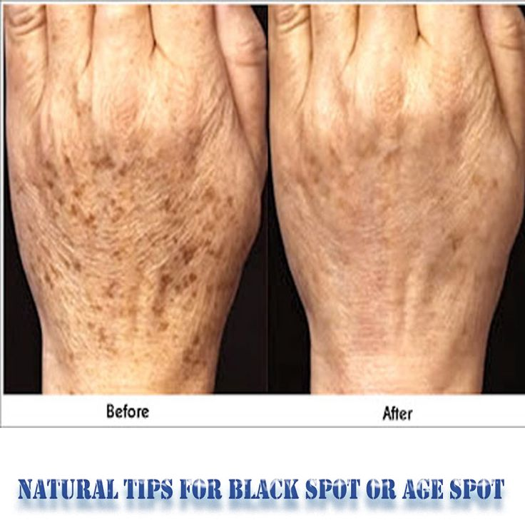 Natural Tips for Black Spot or Age Spot :    1. Create a paste with mehndi and oil and be relevant on the face.  2. Make a combination of 1/2 teaspoon lemon juice and glycerin and be relevant it on the spots. 3. Be relevant the paste of turmeric and curry leaves on the face and clean it after 15 minutes.